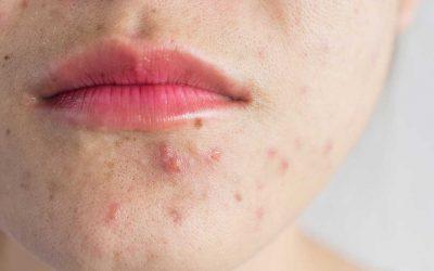 Akne: Diese Behandlungen könnten Abhilfe schaffen